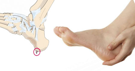 Sperone calcaneare